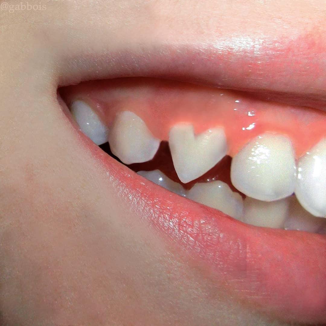 Gabbois instagram macro photo coeur dent - Gab Bois, l'artiste visuelle qui révèle le beau par le malaise
